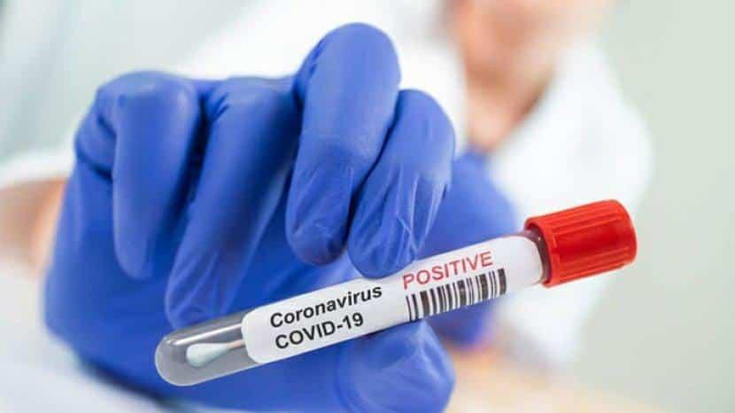 Positif Corona